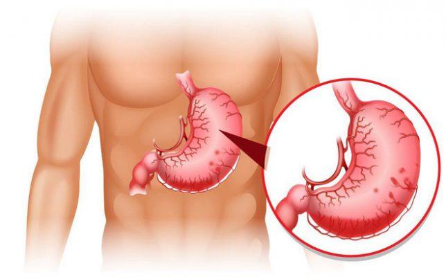 Bệnh dạ dày